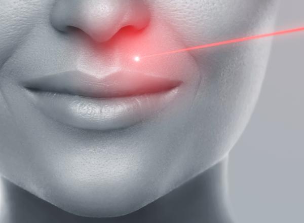 Η ανεπιθύμητη τριχοφυΐα γίνεται παρελθόν με Laser