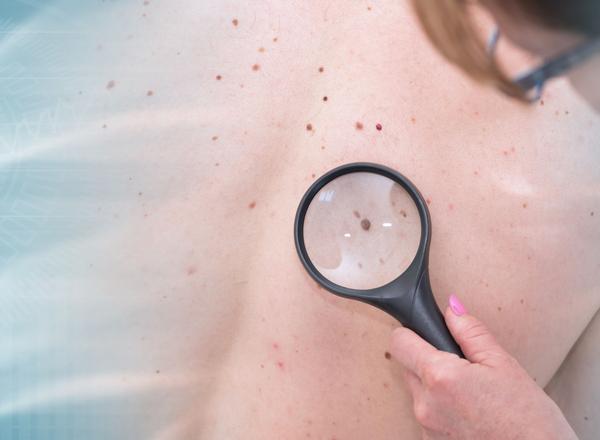 Ανοσοθεραπεία: πολύτιμος σύμμαχος στην καταπολέμηση του μελανώματος