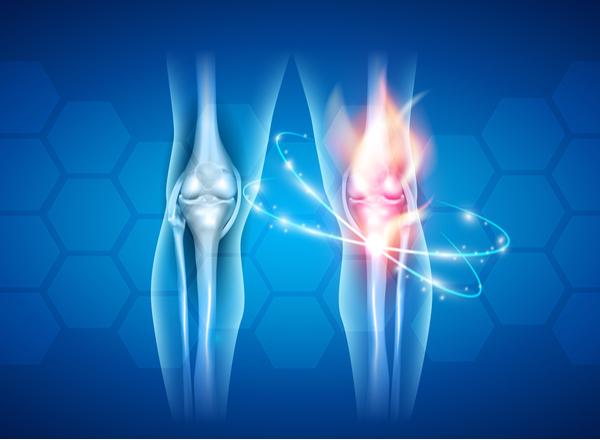 Οστεοαρθρίτιδα γόνατος: Ποια είναι η σχέση πόνου και σωματικής δραστηριότητας;