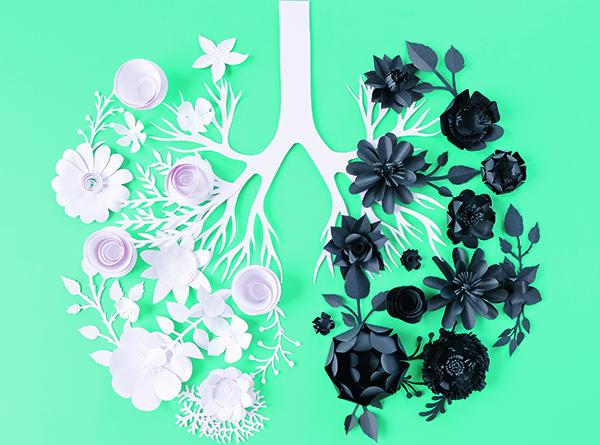 Στερεοτακτική ακτινοθεραπεία (SBRT) στον πρώιμο καρκίνο του πνεύμονα: όταν το χειρουργείο δεν είναι λύση!