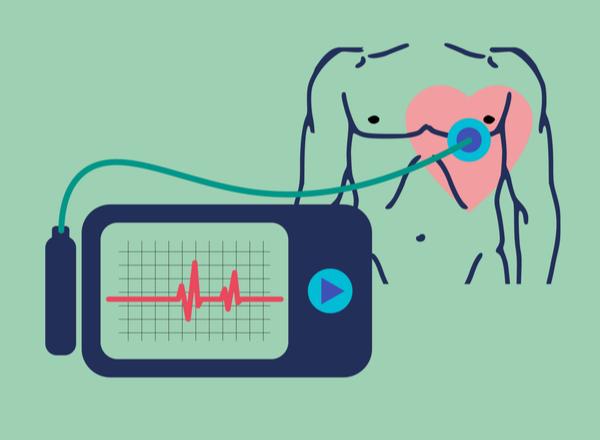 Συχνές ερωτήσεις ασθενών με εμφυτεύσιμη συσκευή ελέγχου καρδιακού ρυθμού.