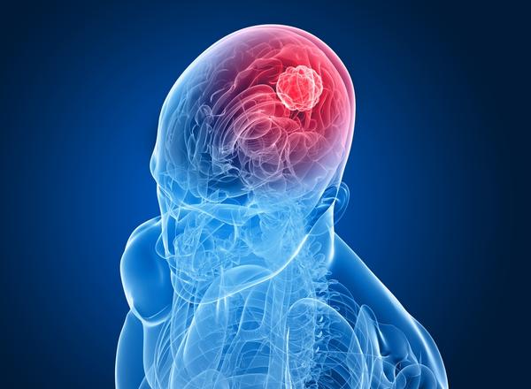 Σύγχρονη αντιμετώπιση εγκεφαλικών μεταστάσεων