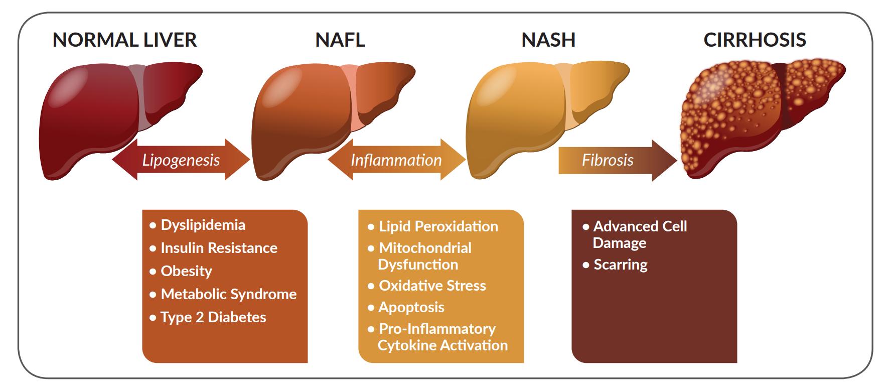 Μη αλκοολική λιπώδης νόσος  ήπατος (NAFLD)